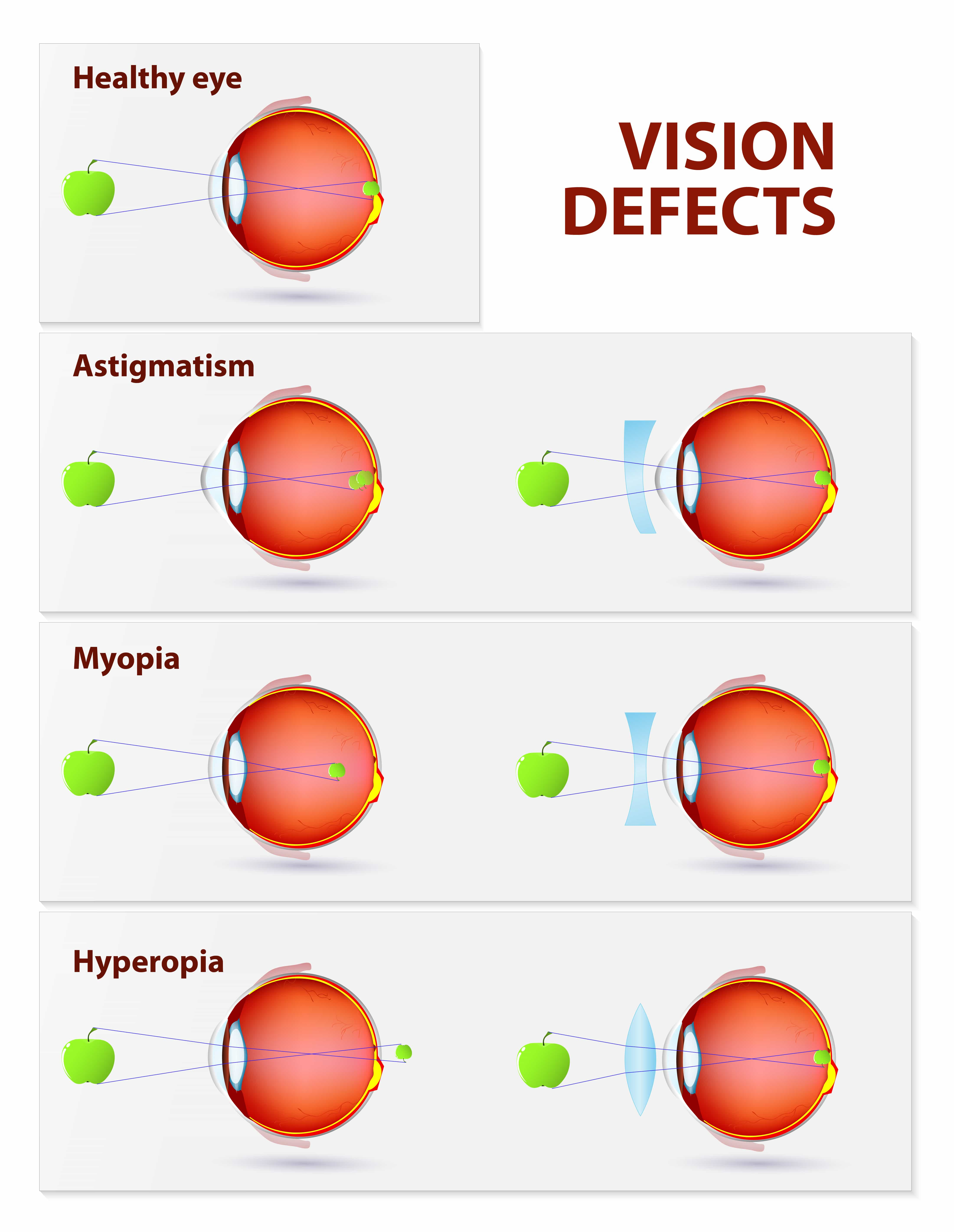 Types of Vision Problems